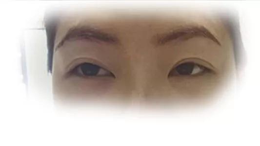从眼睛、眼神看一个人的面相,实例图片展示13种眼睛面相!(下篇)