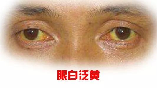 从眼睛、眼神看一个人的面相,实例分析18种眼睛面相,有图有真相!(上篇)