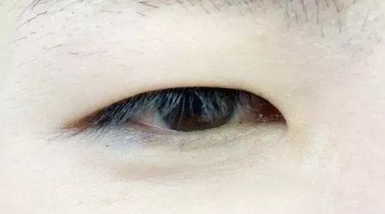 单眼皮还是双眼皮好?从眼皮看命运!