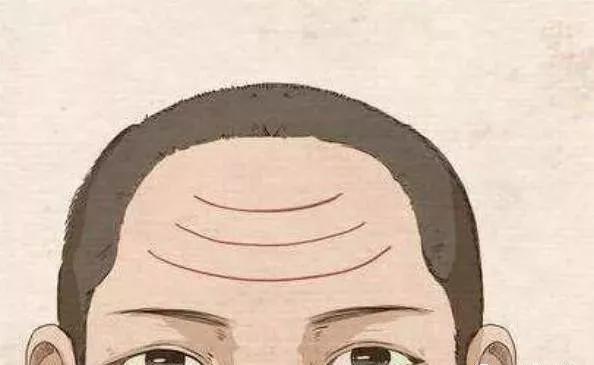 """男人额头有""""三才纹""""好吗?"""