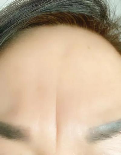 内眼角、人中有痣好不好,怎么改善?