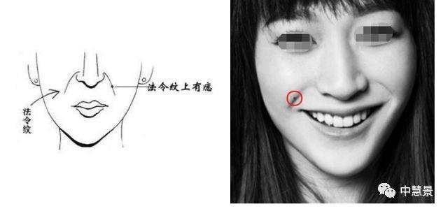 33个面部痣相各个部位的相学意义